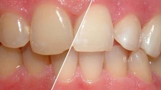 comment empecher les dents jaunir