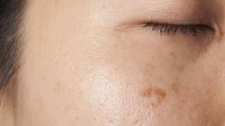 comment-enlever-attenuer-taches-brunes-peau