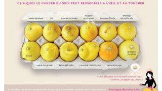 comment-reconnaitre-cancer-sein