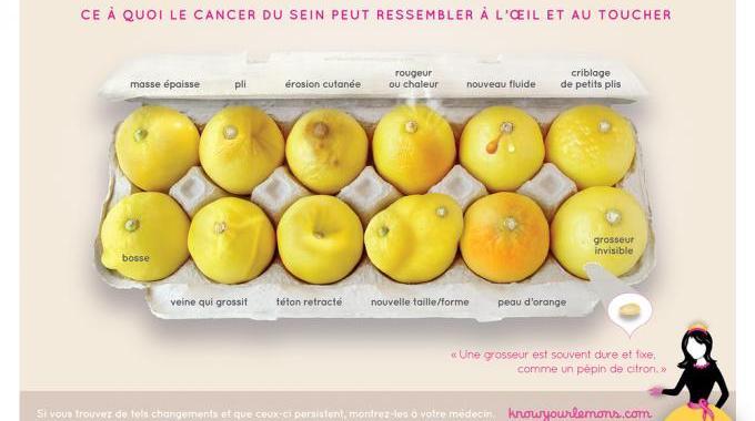 À Quoi Ressemble le Cancer du Sein ? Voici la Photo Qui Va Vous Aider à le Détecter.