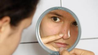 comment-soigner-bouton-acne-naturellement