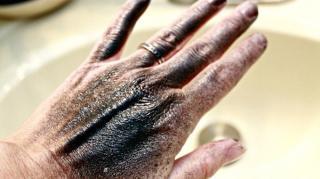 enlever tache peinture peau