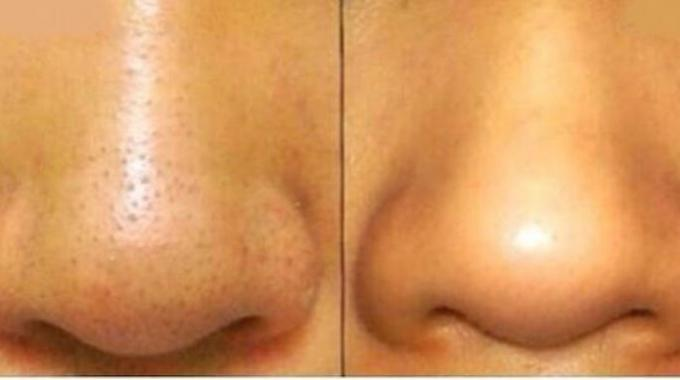 Le masque pour le blanchiment de la personne avec laspirine