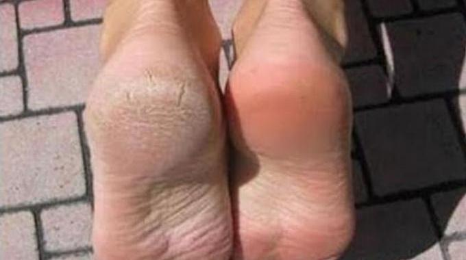 remede naturel pour les pieds secs