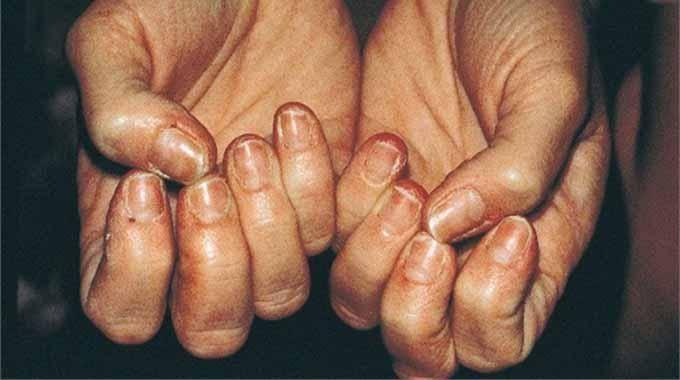 Les moyens les plus populaires du microorganisme végétal des ongles