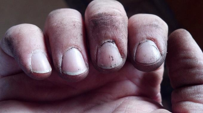 vous avez les ongles noirs de salet voici l 39 astuce pour les nettoyer facilement. Black Bedroom Furniture Sets. Home Design Ideas