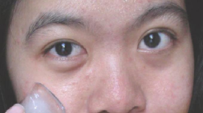 Le rem de miracle contre les poches sous les yeux - Tatouage larme sous l oeil ...