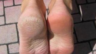 remede-eliminer-corne-pieds-talons