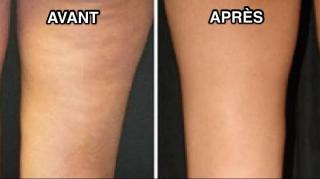 remede-naturel-efficace-anti-cellulite