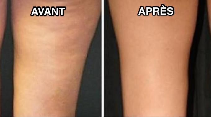 creme anti cellulite naturelle