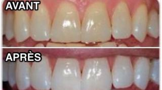 remède pour avoir dents blanches rapidement