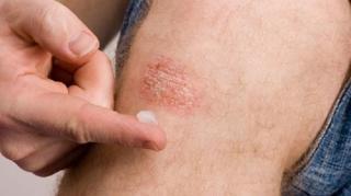 remedes-naturels-psoriasis