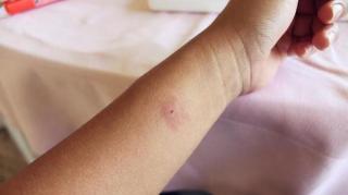 remèdes pour calmer piqure moustique