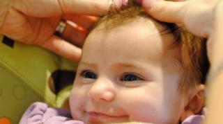 soigner-croute-lait-bebe
