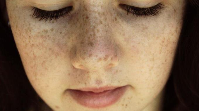 Roux avec les yeux verts et les taches de rousseur de la photo