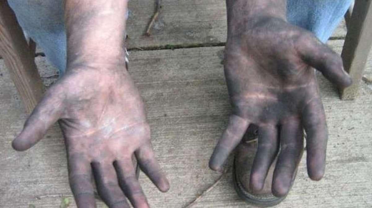 Enlever Brou De Noix Mains l'astuce pour nettoyer facilement ses mains après la mécanique.